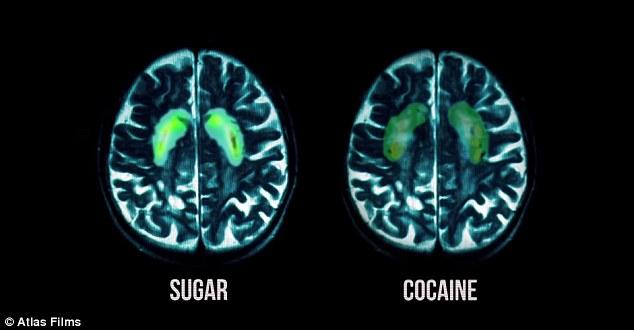 el-azucar-en-nuestro-cerebro